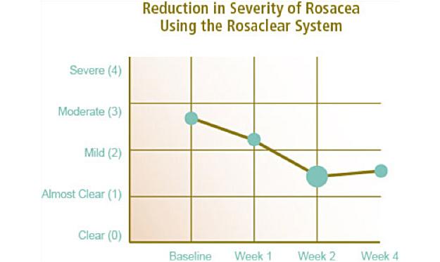 aftercare | sf medica rosacea diagram