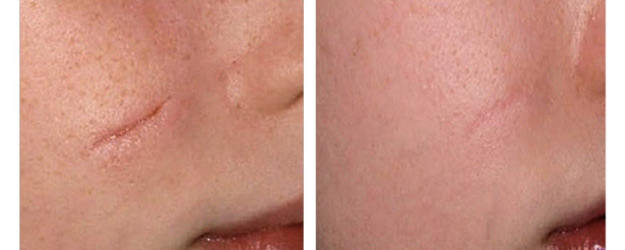 Laser Surgery: Stretch Mark Removal Face Stretch Mark