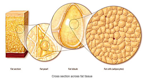About Vaser Liposuction Sf Medica
